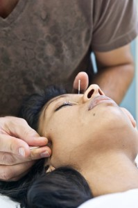 Acupuncture Treatment Thornhill